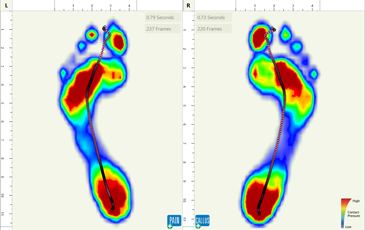 Gait Scan Technology